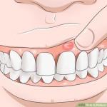 Como tratar gengivas inflamadas em casa