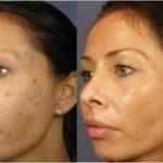 Como clarear a pele com água oxigenada