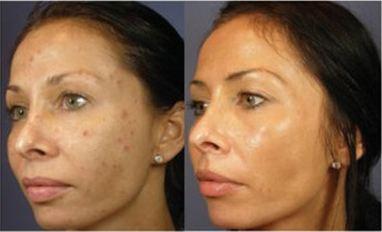 clarear pele do rosro com água oxigenada